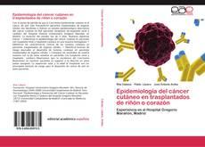 Bookcover of Epidemiología del cáncer cutáneo en trasplantados de riñón o corazón