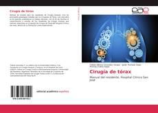 Bookcover of Cirugía de tórax