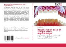 Portada del libro de Regeneración ósea en cirugía oral e implantología