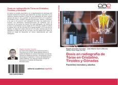 Bookcover of Dosis en radiografía de Tórax en Cristalino, Tiroides y Gónadas