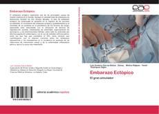 Обложка Embarazo Ectópico