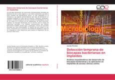 Portada del libro de Detección temprana de biocapas bacterianas en implantes