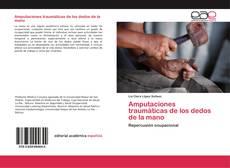 Bookcover of Amputaciones traumáticas de los dedos de la mano