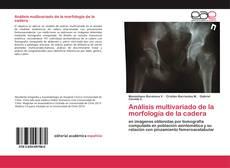 Copertina di Análisis multivariado de la morfología de la cadera