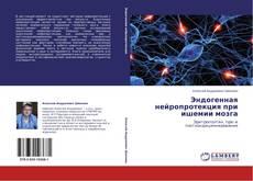 Эндогенная нейропротекция при ишемии мозга的封面