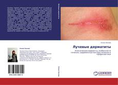 Обложка Лучевые дерматиты