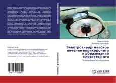 Bookcover of Электрохирургическое лечение перикоронита и образований слизистой рта