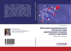 Bookcover of Лечение ишемического инсульта при симптомном стенозе сонных артерий