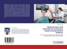Bookcover of Malocclusion and orthodontic treatment needs among school children