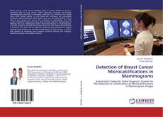 Buchcover von Detection of Breast Cancer Microcalcifications in Mammograms