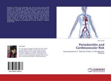 Bookcover of Periodontitis and Cardiovascular Risk