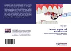 Bookcover of Implant supported overdentures