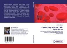 Bookcover of Гемостаз после ТУР-простаты