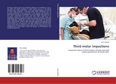 Bookcover of Third molar impactions