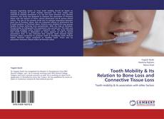 Couverture de Tooth Mobility & Its Relation to Bone Loss and Connective Tissue Loss