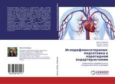 Bookcover of Иглорефлексотерапия: подготовка к каротидной эндартерэктомии