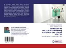 Portada del libro de Замещение пострезекционных дефектов грудной клетки