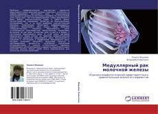 Couverture de Медуллярный рак молочной железы