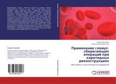 Bookcover of Применение гломус-сберегающих операций при каротидных реконструкциях