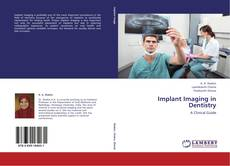 Bookcover of Implant Imaging in Dentistry