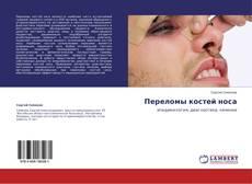 Copertina di Переломы костей носа