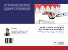 Buchcover von Re-attachment techniques for anterior fractured teeth