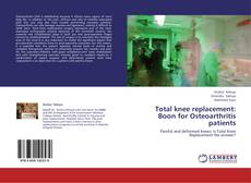 Bookcover of Total knee replacement: Boon for Osteoarthritis patients