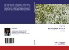 Couverture de Oral Lichen Planus
