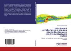 Bookcover of Нарушения метаболизма липидов при заболеваниях желчевыводящих путей