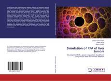 Portada del libro de Simulation of RFA of liver tumors