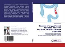 Bookcover of Скрининг и удаление полипов толстой кишки в амбулаторных условиях