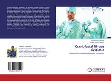 Bookcover of Craniofacial fibrous dysplasia