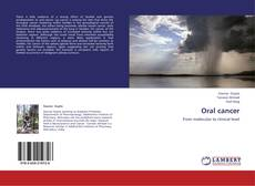 Bookcover of Oral cancer