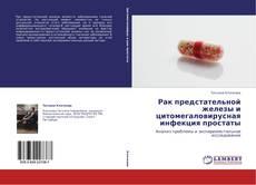 Couverture de Рак предстательной железы и цитомегаловирусная инфекция простаты