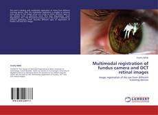 Bookcover of Multimodal registration of fundus camera and OCT retinal images