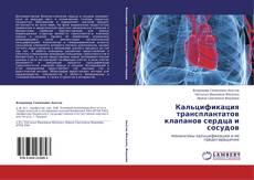 Couverture de Кальцификация трансплантатов клапанов сердца и сосудов