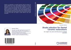 Bookcover of Shade selection for Dental Ceramic restorations