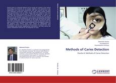 Buchcover von Methods of Caries Detection