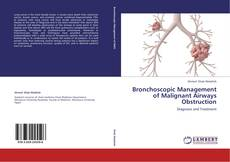 Bookcover of Bronchoscopic Management of Malignant Airways Obstruction