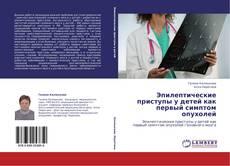 Bookcover of Эпилептические приступы у детей как первый симптом опухолей