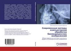 Bookcover of Современные методы компьютерной обработки  биомедицинских изображений