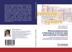 Bookcover of Мезенхимальные стволовые клетки при рассеянном склерозе
