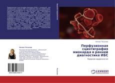 Buchcover von Перфузионная сцинтиграфия миокарда в ранней диагностике ИБС