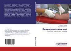 Bookcover of Дермальные ангииты