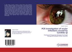Bookcover of PCR investigation of ocular infections caused by Candida sp