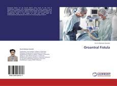 Oroantral Fistula kitap kapağı