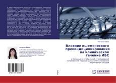 Bookcover of Влияние ишемического прекондиционирования на клиническое течение ИБС