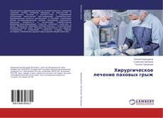 Bookcover of Хирургическое лечение паховых грыж