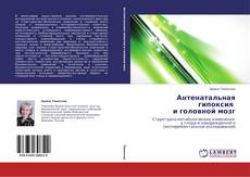Bookcover of Антенатальная гипоксия   и головной мозг