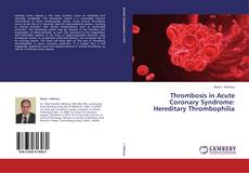 Bookcover of Thrombosis in Acute Coronary Syndrome: Hereditary Thrombophilia